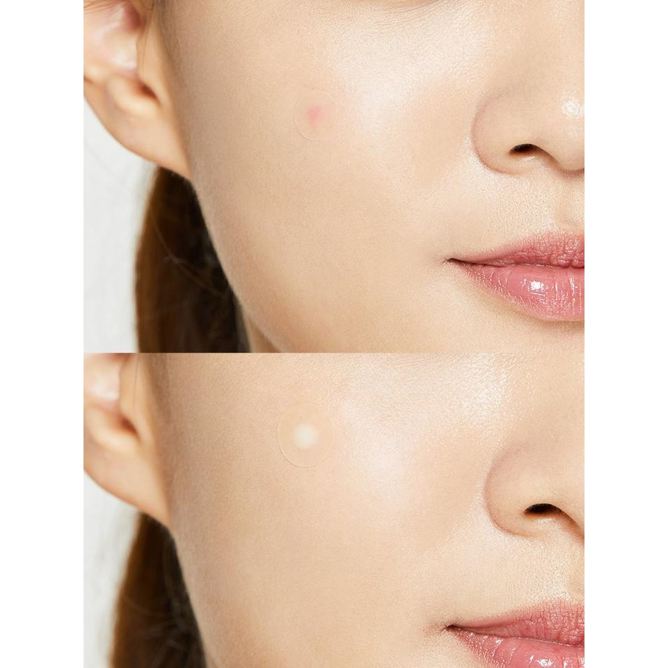Cosrx – Acne Pimple Master 24 patches k beauty